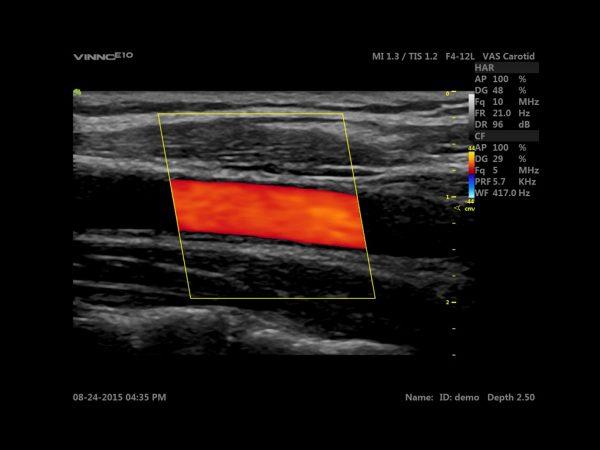 Modul4-Vascular-periferic