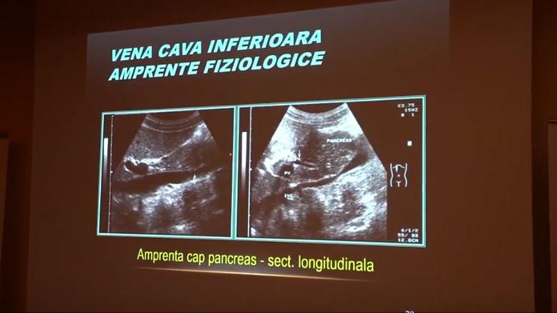 EDUSON - Modulul III Cursul 2: Aorta abdominala